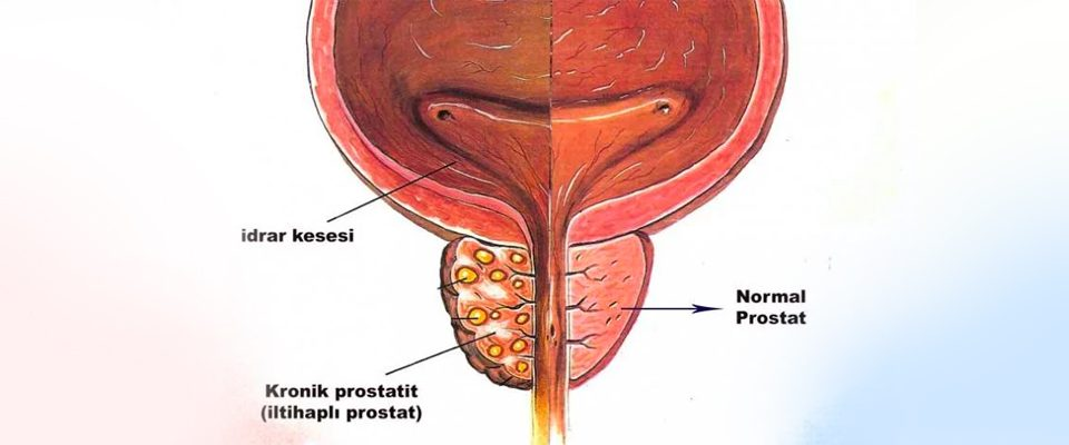 kronik prostatit