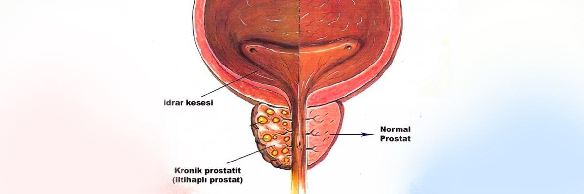 Простатит отдает в печень чем лечат простатита у мужчин народные средства